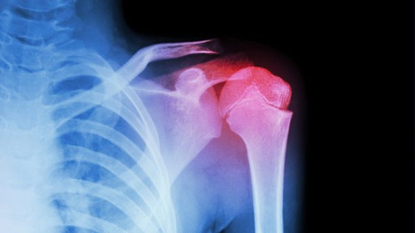 Shoulder injuries can be caused by occupational or athletic activities that involve repeated shoulder movements