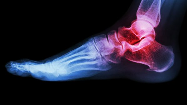 Orthopaedic Specialties - Foot & Ankle Injuries or problems