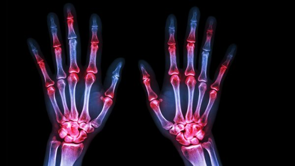 Orthopaedic Specialties - Hand & Wrist Injuries or problems