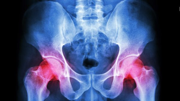 Hip Injuries or trauma