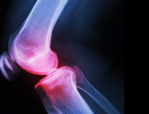Position Statement from the Australian Knee Society on Arthroscopic Surgery of the Knee