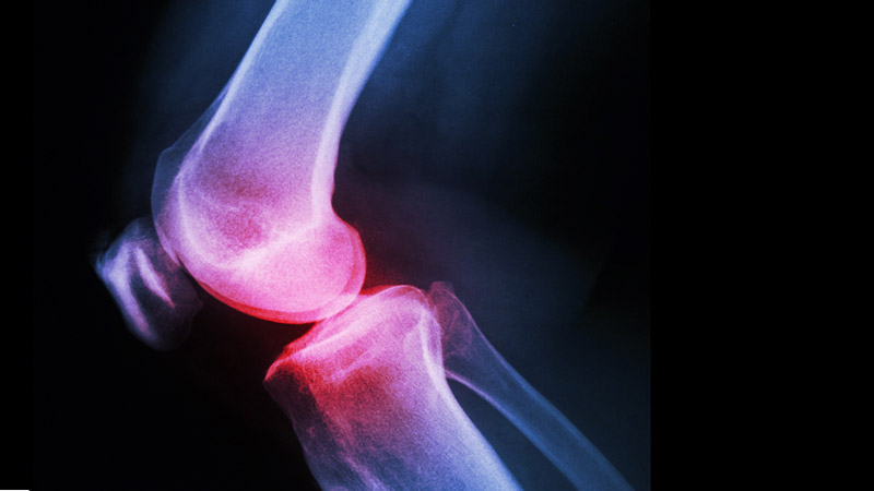 Position Statement from the Australian Knee Society on Arthroscopic Surgery of the Knee,
